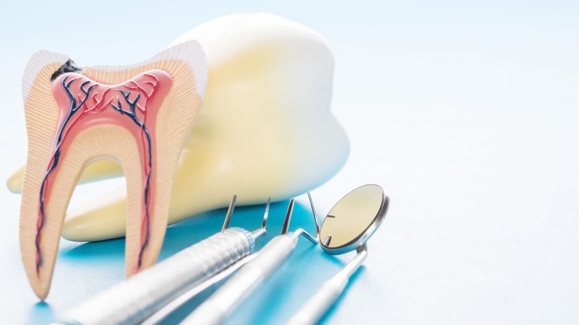 What Are The Symptoms of a Failed Root Canal?